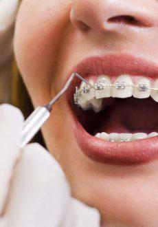 ortodoncja-img-25a